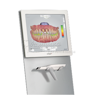 Сканер бездротовий без рукоятки на візку TRIOS 3